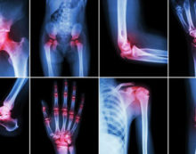 Managing  arthritis and joint pain